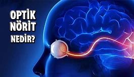 Optik Nörit Nedir?