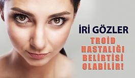 Troid Hastalığı İri Gözler İle Belirti Verebilir