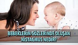 Bebeklerin Gözlerinde Oluşan Nistagmus Nedir?