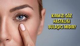 Kırmızı Göz Hastalığı nedir, Bulaşıcı mıdır?