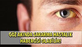Göz Akında Sararma Hastalık Habercisi Olabilir!