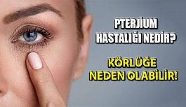 Gözün İçerisinde Ortaya Çıkan Pterjium Hastalığı Nedir?