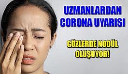 Uzmanlardan Corona Uyarısı: Gözlerde Bunlara Dikkat!