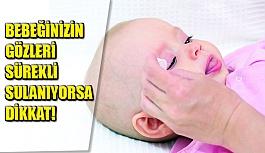 Bebeğinizin Gözleri Sürekli Sulanıyorsa Dikkat!