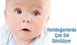 Bebeklerde göz çapaklanmasına dikkat