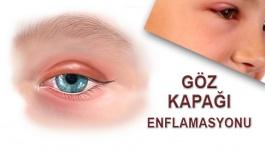 Göz Kapağı Enflamasyonu Nedir?