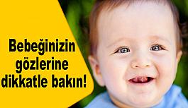 Bebeğinizin gözlerine dikkatle bakın!
